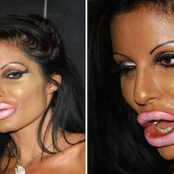 plastic surgery gone wrong 2