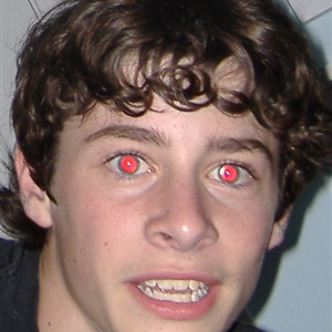 Red Eyed Teen