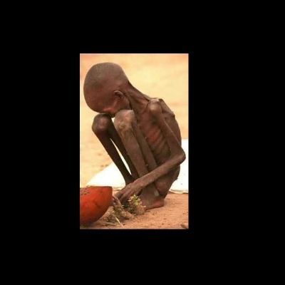 Starving African Child