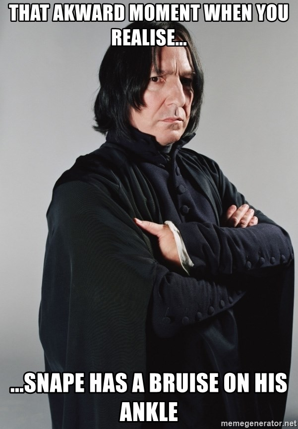 Snape - THat akward moment when you realise... ...snape has a bruise on his ankle