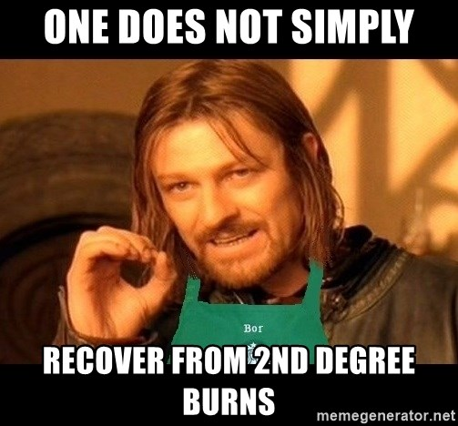 Barista Boromir - ONE DOES NOT SIMPLY recover from 2nd degree burns