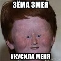 Generic Ugly Ginger Kid - Зёма змея Укусила меня