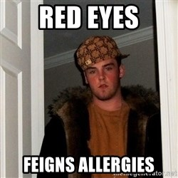 Scumbag Steve - red eyes feigns allergies