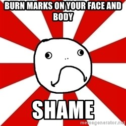 Shame Nob - burn marks on your face and body  shame