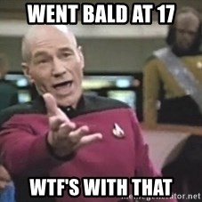 Picard Wtf - went bald at 17 wtf's with that