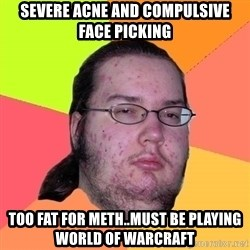 Butthurt Dweller - severe acne and compulsive face picking too fat for meth..must be playing world of warcraft