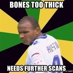 Rodolph Austin - bones too thick needs further scans