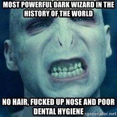 Angry Voldemort - MOST POWERFUL DARK WIZARD IN THE HISTORY OF THE WORLD NO HAIR, FUCKED UP NOSE AND POOR DENTAL HYGIENE