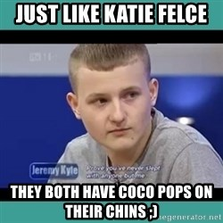 Sympathy Sacha - Just like Katie Felce They both have Coco Pops on their chins ;)