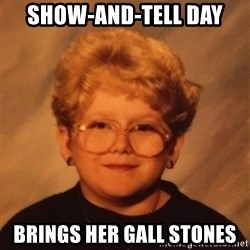 60 Year-Old Girl - Show-and-tell day Brings her gall stones