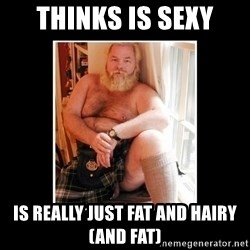 Sexy Scotsman - Thinks is sexy Is really just fat and hairy (and fat)