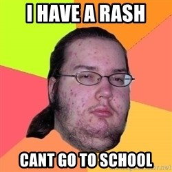 Butthurt Dweller - i have a rash  cant go to school