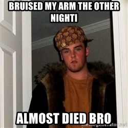 Scumbag Steve - Bruised my arM the other nighti Almost dIed bRo