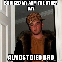 Scumbag Steve - BruIsed my arm the other day Almost died bro