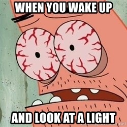 Patrick - when you wake up and look at a light