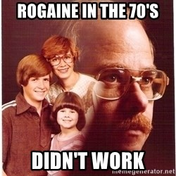 Vengeance Dad - Rogaine in the 70's Didn't work