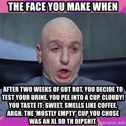 drevil - The face you make when after two weeks of gut rot, you decide to test your urine. You pee into a cup. Cloudy! You taste it: sweet. Smells like coffee. Argh. The 'mostly empty' cup you chose was an XL DD TH dipshit.