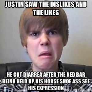 Justin Bieber 213 - justin saw the dislikes and the likes he got diarrea after the red bar being held up his horse shoe ass see his expression