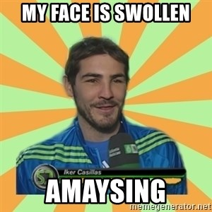 Iker Casillas - my face is swollen amaysing