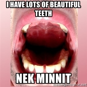 RandomRandy - I HAVE LOTS OF BEAUTIFUL TEETH NEK MINNIT