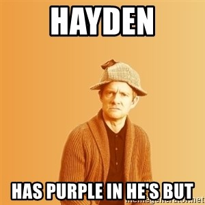 TIPICAL ABSURD - HAYDEN HAS PURPLE IN HE'S BUT