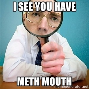 I SEE YOU HAVE - i see you have meth mouth
