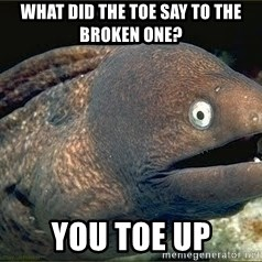 Bad Joke Eel v2.0 - what did the toe say to the broken one? You toe up