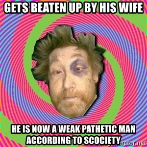 Russian Boozer - Gets beaten up by his wife He is now a weak pathetic man according to scociety