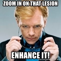 David Caruso CSI - Zoom in on that lesion enhance it!