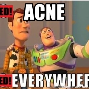 Toy Story Everywhere - acne