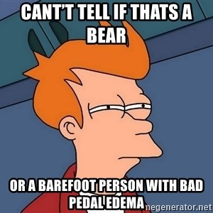 Futurama Fry - Cant't tell if thats a bear  Or a barefoot person with bad pedal edema