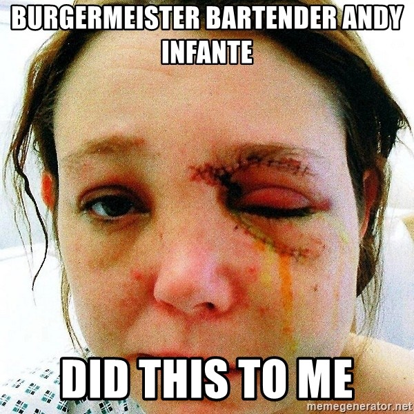 ANDY SANCHEZ - burgermeister bartender andy infante did this to me