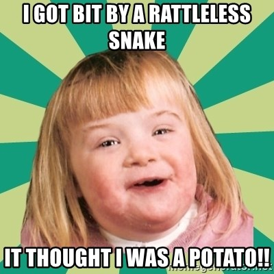 Retard girl - I got bit by a rattleless snake It thought I was a POTATO!!