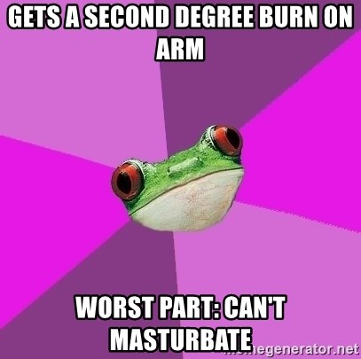 Foul Bachelorette Frog - Gets a second degree burn on arm worst part: Can't masturbate