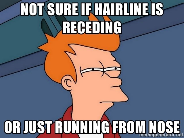 Futurama Fry - not sure if hairline is RECEDING  or just running from nose