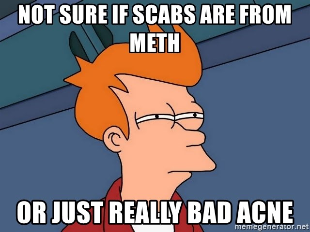 Futurama Fry - Not sure if scabs are from meth Or just really bad acne