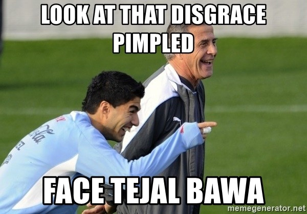 Luis Suarez - look at that disgrace pimpled face tejal bawa
