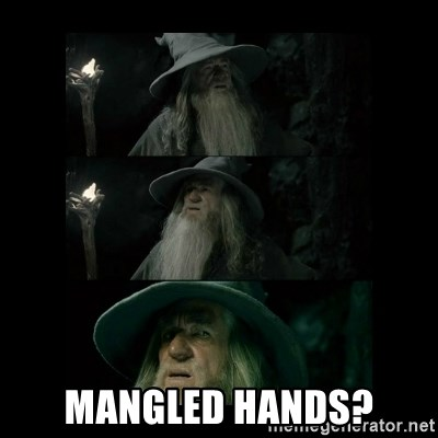 Confused Gandalf - Mangled hands?
