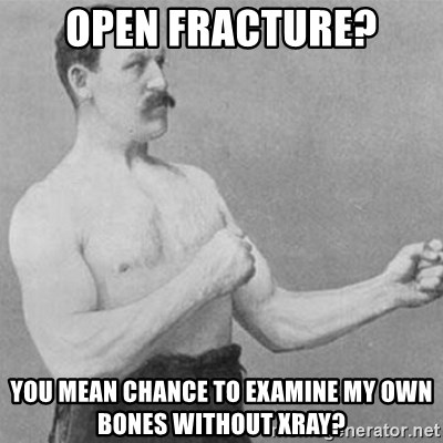 overly manly man - open fracture? you mean chance to examine my own bones without xray?