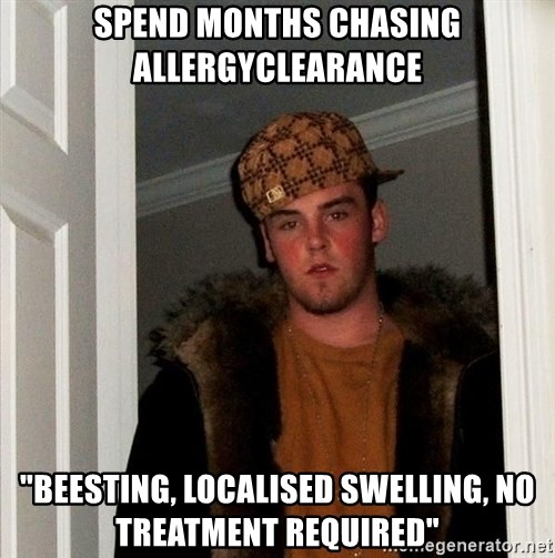 """Scumbag Steve - Spend months chasing allergyclearance """"Beesting, localised swelling, no treatment required"""""""