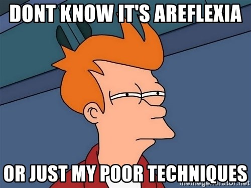 Futurama Fry - dont know it's areflexia or just my poor techniques