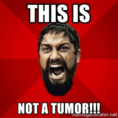 THIS IS SPARTAAA!!11!1 - this is not a tumor!!!