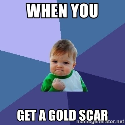 Success Kid - when you get a gold scar